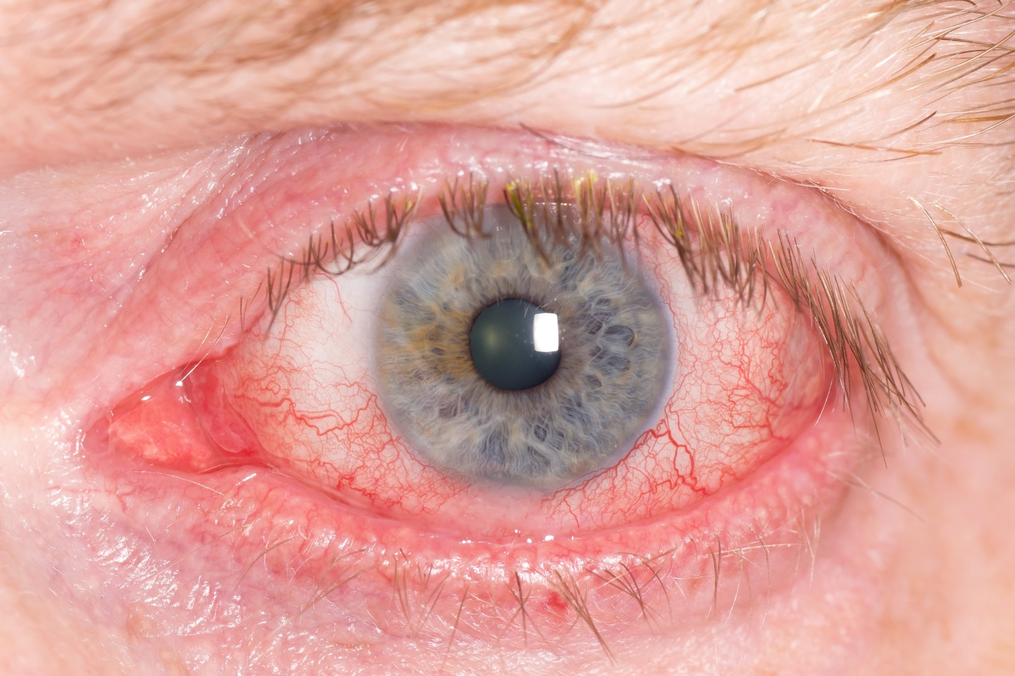5 Ways Lupus Can Affect Your Eyes